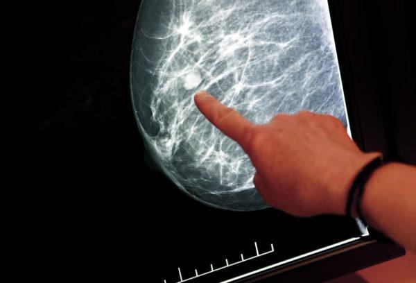 عکس ماموگرافی