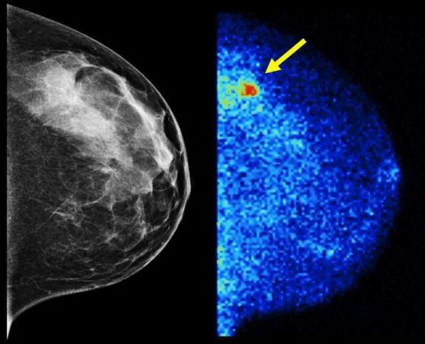 عکس تومور پستان