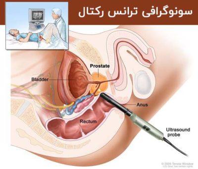 عوارض بیوپسی پروستات