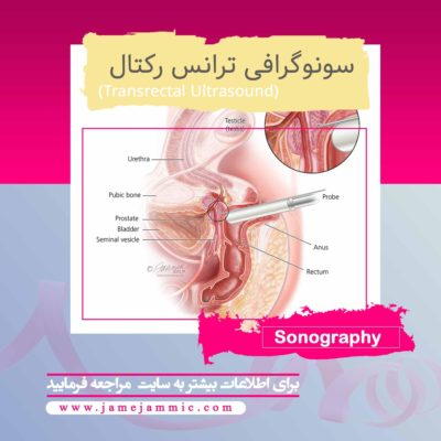 سونوگرافی ترانس رکتال