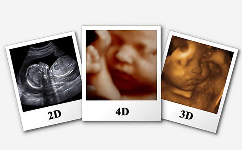 سونوگرافی سه بعدی یا چهاربعدی