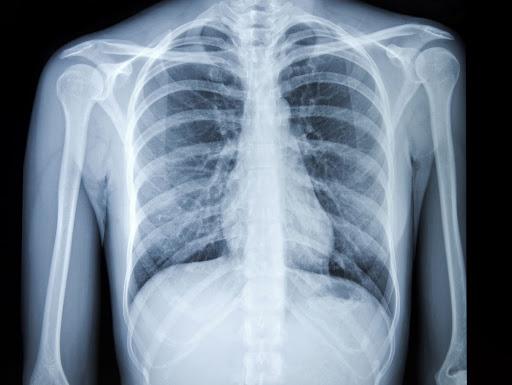 رادیوگرافی چیست