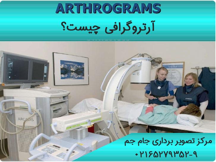 آرتروگرافی
