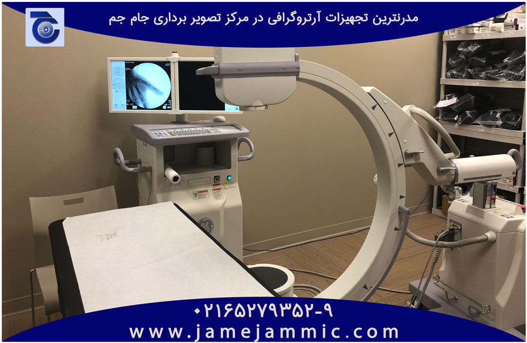 آرتروگرافی چیست؟